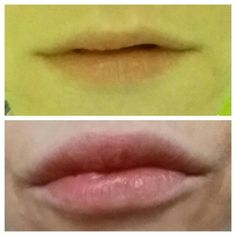 Wow great results from using a lipgloss