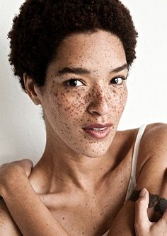 natural and freckles, cute