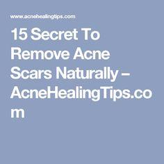 15 Secret To Remove Acne Scars Naturally – AcneHealingTips.com