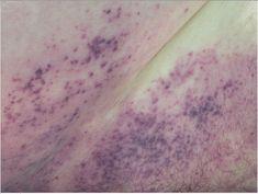 Tardieu spots within hypostasis via @WKemp_MT_FPDoc on Twitter