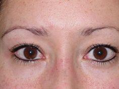 After permanent eyeliner, mpipermanentmakeup.com, via Flickr.