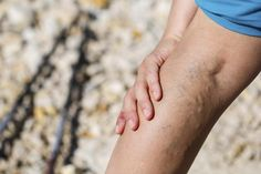Varicose eczema, or stasis dermatitis: Symptoms, causes, and treatment Varicose Veins During Pregnancy, Varicose Vein Remedy, Urinary Incontinence, Mosquitos, Natural Remedies, San Diego, San Francisco, Pasta Casera, Funniest Quotes