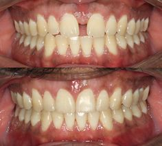 Invisalign to close spaces in 9 months. Actual patients of Impressions Orthodontics.