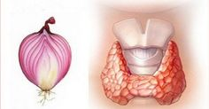 Onion is a well known to be a skin cleaner, bacteria killer, and blood purifier.Another way onion can be helpful is in the case of a disturbed thyroid.Igor Knjazkin, a doctor from Sant Petersburg, wrote a Thyroid Issues, Thyroid Gland, Thyroid Problems, Thyroid Cancer, Thyroid Disease, Red Onion Recipes, Sante Plus, Hypothyroidism, Fix You