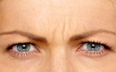 Before & After Gallery| BOTOX® Cosmetic Website