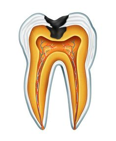 Fluoride Treatments can help to protect teeth from decay: Fluoride is simply a mineral that contributes to oral health by making teeth more resistant to acid produced by bacteria that can cause tooth decay.