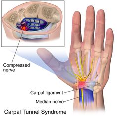 Everyday pain management ideas: Surgery or Physical Therapy? Carpal Tunnel Syndrome Pain 6 and 12 Months After Treatment Carpal Tunnel Surgery, Carpal Tunnel Relief, Pain Relief, Wrist Pain, Wrist Brace, Carpel Tunnel Syndrome, Median Nerve, Spinal Cord, Massage Therapy