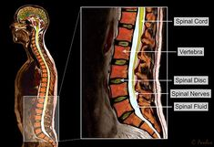 Color MRI of the Human Lumbar Spine (Low Back) Anatomy with Annotations. Created by Medical Media Images. Ideal for Websites and Publications. Chronic Sciatica, Sciatic Nerve, Nerve Anatomy, Sciatica Pain Treatment, Medical Websites, Disk Herniation, Spine Surgery, Sciatica Exercises, Bone Diseases