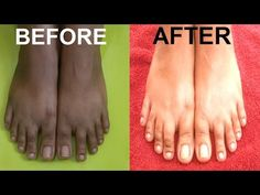 Today we are going to share one easiest remedy that can remove sun tan instantly from your feet and in just few minutes you can notice the difference in your feet Step 1 – Soaking You will need Hot water Shampoo Lemon juice Take warm water in a tub Add 2 tbsp shampoo in this Add …