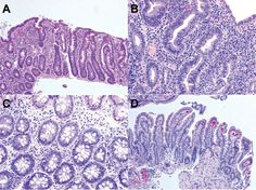 Figure 1 from A Novel Variant in the STAT3 Gene Associated with Autoimmune Enteropathy in a Father–Son Duo, published in Journal of Genomes and Exomes http://www.la-press.com/article.php?article_id=4092