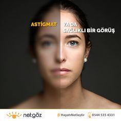 Lazer göz ameliyatları ile gözlük ya da kontakt lens kullanımı sonlandırılabilir. Göz yapısına ve görme probleminin türüne özel uygulanan Refraktif cerrahi uygulamaları (RelexSmile, Excimer Lazer, Lasik, Presbyond, No-Touch) ile tetkikler sonucunda uygun görünen kişilerde görme problemeleri tedavi edilebilmekte.   Her görme kusuru için farklı görüş düzeltme teknolojisi uygulanarak hasta göz yapısına en uygun tedavi ile başarılı sonuçlar alınabilmekte.     Tüm göz problemleriniz için 👉 netgoz.ne Laser Eye Surgery, Eyes, Cat Eyes