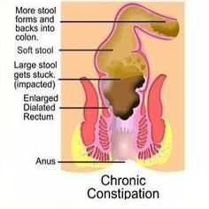 Water Retention Cures Natural Way