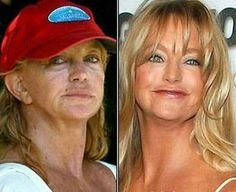 celebs without makeup before and after | Celebrities Without Makeup Before and After - My Star Club