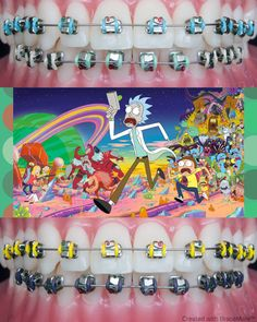 Tv show Sundays #RickandMorty #RickSanchez #MortySmith #Rick #Morty #braces #brackets #orthodontics #orthodontist #ortodoncia #ortodoncista #ortodontia #ortodontista #frenos #frenillos #braceson #bracesproblems #ортодонт #ортодонтия #zahnspange #aparelho #aparelhoortodontico #cosplay #color #app