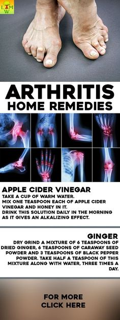 A doctor can prescribe medication or you can take over-the-counter pain relievers. However, you can also try some of these home remedies.