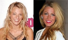 Las 10 Celebrities mejor operadas