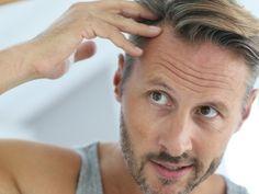 Volles Haar durch Haartransplantation