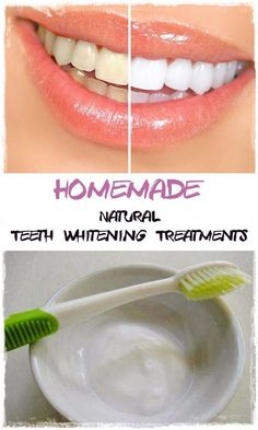 Natural Teeth Whitening Treatments. Tips for getting your teeth whiter #ConcealerTips Beauty Care, Diy Beauty, Beauty Skin, Beauty Hacks, Beauty Makeup, Teeth Whitening Remedies, Natural Teeth Whitening, Whitening Kit, My Little Beauty