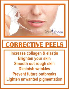 Peel away your summer damaged skin. Corrective peels are a quick way to improve the skin's appearance by reducing presence of fine lines, wrinkles and blemishes.With corrective peel solutions, we can effectively treat: fine lines & wrinkles, active acne & acne scarring, brown spots, sun damage, and rosacea.