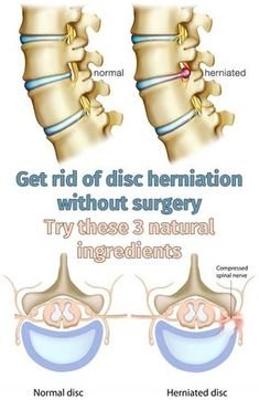 Get rid of disc herniation without surgery. Try these 3 natural ingredients - Health & Fitness & Remedy Fitness Gifts, Health Fitness, Intervertebral Disc, Disk Herniation, Spinal Nerve, Spinal Cord, Spine Health, Alternative Therapies, Sciatica