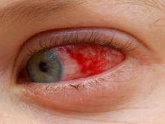 Uveitis is inflammation of the middle layer of the eye that can lead to blindness if untreated. Find out how to spot it and what to do about it. Corneal Ulcer, News Australia, Eye Pain, Parts Of The Eye, Juvenile Arthritis, The Retina, Vision Eye, White Blood Cells, Ulcerative Colitis