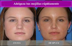 Todos los rostros son distintos, y vienen en todas las formas y tamaños y, afortunadamente, hay formas de influenciar la misma a través de ejercicios fa