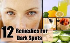 Natural Remedies To Remove Dark Spots | Health & Natural Living