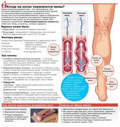 Варикозное расширение вен на ногах операция лазером