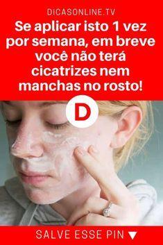 Eliminar cicatrices   Se aplicar isto 1 vez por semana, em breve você não terá cicatrizes nem manchas no rosto!   É superfácil, natural e você não gasta quase nada para fazer. Aprenda.