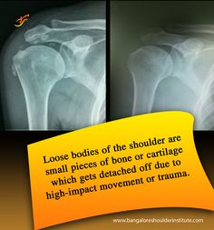 Theseloose bodiescan move throughout the joint, causing pain and stiffness while moving between areas. Treatment generally consists of Anti-inflammatory medications to temporarily ease pain, Physical Therapy, Corticosteroid injection or a Surgical intervention if the other methods don't help ease symptoms.  For enquiries and online appointments, send a message @ www.BangaloreShoulderInstitute.com/contact #LooseBodiesOfTheShoulder #ShoulderPain #ShoulderInjury #TreatmentOfShoulderInjuries Shoulder Arthroscopy, Shoulder Doctor, Shoulder Dislocation, Shoulder Problem, Surgeon Doctor, Shoulder Surgery, Shoulder Injuries, Physical Therapy, Arthritis