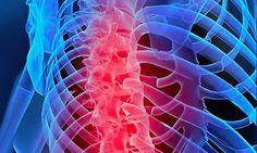 ESPALDA (dolores de …) – PARTE CENTRAL DE LA ESPALDA (12 vértebras dorsales)