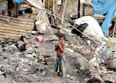 The social concept relatable to this image is poverty. Poverty can be described as a state of being extremely poor. this image shows just one of the many kids that lives in poverty.