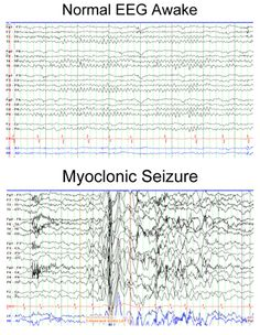 Normal EEG Awake compared to Myoclonic Seizures.