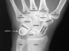 Radiographic Anatomy of the Skeleton: Wrist -- Posteroterior (PA) View, Labelled