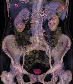 PET CT Image mCT