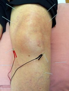 Electro acupuncture for osteoarthritis of the knee Find treatment in London? Please visit : http://acupuncture.blog.co.uk  Or Call 07967525168