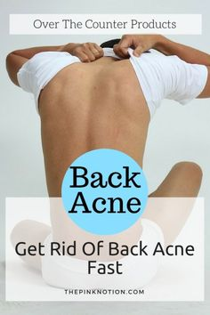 Back Acne occurs on shoulders, upper arms, back even on the chest due to sweating that clogs the pore. Get rid of back acne with these over the counter treatment.