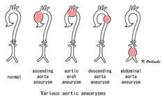 Mine was an ascending aorta aneurysm.