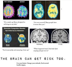 The Brain Can Get Sick Too. Amazing brain scans to show to mental changes caused by psychological disorders