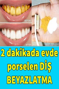 Skin Care Remedies, Natural Health Remedies, Skin Care Routine Steps, Flat Belly Workout, Natural Teeth Whitening, Diy Chandelier, Healthy Beauty, White Teeth, Easy Diy Crafts