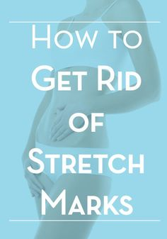 Helpful advice from a Derm on how to treat and hopefully get rid of stretch marks.