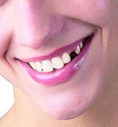 TEMPORARY COSMETIC TOOTH..DIY Replace missing teeth makes 25 Temp Teeth
