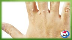 Remedios caseros para eliminar las verrugas de forma natural