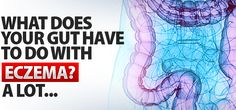 What Does Your Gut Have to Do With Eczema? A Lot... #gaps