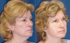 "Botox free, guaranteed 15 years less "" - - My MartoKizza Serum, Anti Aging, Les Rides, Spa, Glamour, Hair Styles, Face, Beauty, Blog"