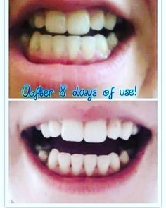 I'm excited to announce that I'm selling this amazing whitening toothpaste  peroxide free & non abrasive  pm to order yours #smile #brighter #teethwhitening #teeth #whitening #dazzle by l4dylau_ Our Teeth Whitening Page: http://www.myimagedental.com/services/cosmetic-dentistry/teeth-whitening/ Other Cosmetic Dentistry services we offer: http://www.myimagedental.com/services/cosmetic-dentistry Google My Business: https://plus.google.com/ImageDentalStockton/about Our Yelp Page: bit.ly/1KZUPer…