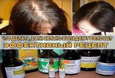Что делать, если сильно выпадают волосы? Лучший рецепт.