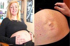 en realidad no es la cara del bebe lo que está en su barriga, si no una curiosa combinación de su ombligo, la cicatriz de un viejo piercing y varias estrías provocadas del embarazo.    Esas tres cosas combinadas con el empuje del bebe en el abdomen de Karen hacen que parezca que se pueda ver la cara