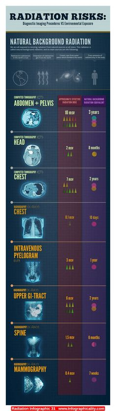Radiation Infographic 31 - http://infographicality.com/radiation-infographic-31/