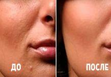 Эта маска творит чудеса! Через месяц ваша кожа будет сияющей и шелковистой
